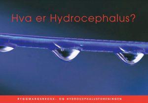 Forsidebilde til brosjyren Hva er Hydrocephalus.
